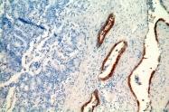 14965-1-AP - Cytokeratin 19