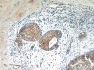60187-1-Ig - Cytokeratin 19