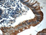 17329-1-AP - Cytokeratin 20
