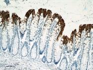 60183-1-Ig - Cytokeratin 20