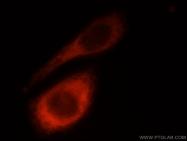 23498-1-AP - Laminin beta-1 / LAMB1