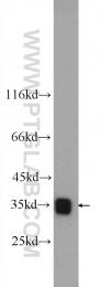 14824-1-AP - LDHB