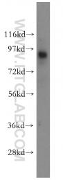 10281-1-AP - Galectin-3-binding protein