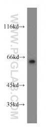 12483-1-AP - LGI1 / EPT