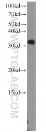 10931-1-AP - MEF2B