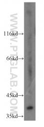 13898-1-AP - MAP2K3