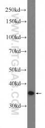51094-1-AP - MAP2K6