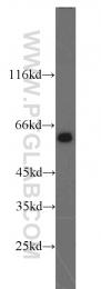 12330-2-AP - TAK1 / MAP3K7