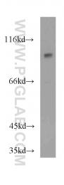 55244-1-AP - MAP4K2