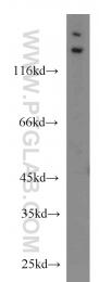 24064-1-AP - Matrilin-2