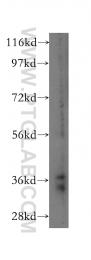16225-1-AP - MCL1