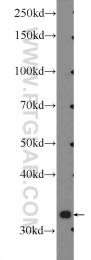 17623-1-AP - Inositol oxygenase