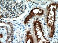 10302-1-AP - CD10 / Neprilysin