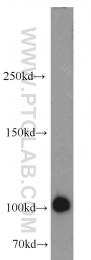 18008-1-AP - CD10 / Neprilysin