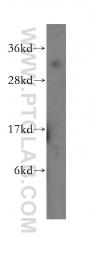 11481-2-AP - MPG / ANPG