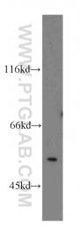 14715-1-AP - MPP1