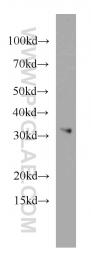 21604-1-AP - MRPL28
