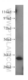 15682-1-AP - MRPL45