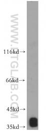 16457-1-AP - MRPS35