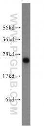 14547-1-AP - Methionine Sulfoxide Reductase A / MSRA