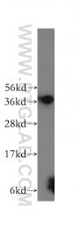 12270-1-AP - MTHFD2