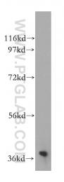 15051-1-AP - NAGK