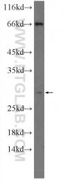 15602-1-AP - NDFIP1