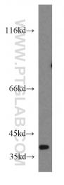 20312-1-AP - NDUFA9