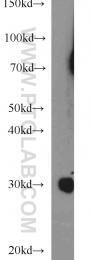 15066-1-AP - Complex I subunit NDUFS3