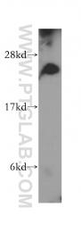 15301-1-AP - NDUFV2