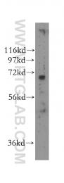 11621-1-AP - NEIL3