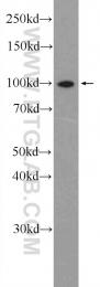 15503-1-AP - NFKB2 / NF-kappa-B p100/p52