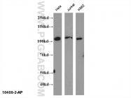 10409-2-AP - NFKB2 / NF-kappa-B p100/p52