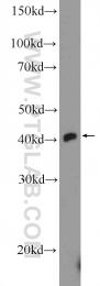 21777-1-AP - TTF1 / NKX2A