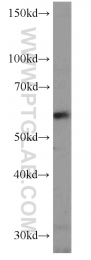 11546-1-AP - NMT1