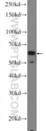 25350-1-AP - NADPH oxidase 5 / NOX5