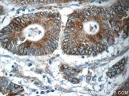 25517-1-AP - Neuropeptide B