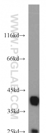 10306-1-AP - Nucleophosmin