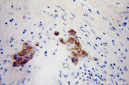 10889-1-AP - Neuronal pentraxin-2