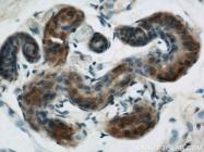 21854-1-AP - Mineralocorticoid receptor