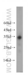 18084-1-AP - Neurotrophin 3 / NTF3