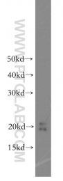 16705-1-AP - NUDT1