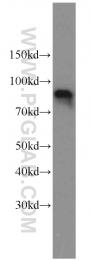 11076-1-AP - Oligophrenin-1