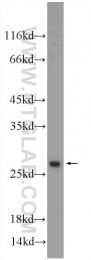 11199-1-AP - ORM2 / AGP2