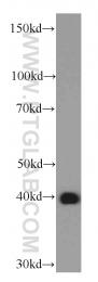 66128-1-Ig - OXA1L
