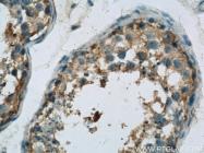 23418-1-AP - Osteocalcin