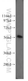 11245-1-AP - PDI / P4HB