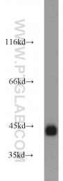 22099-1-AP - Podoplanin