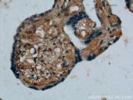 10642-1-AP - Placenta growth factor / PGF