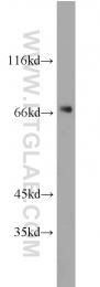 11022-1-AP - PGM2
